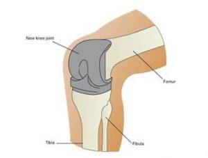 AHKC Knee Replacement Surgeons Adelaide
